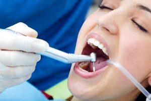 עקירת שיניים – הוראות להחלמה מיטבית