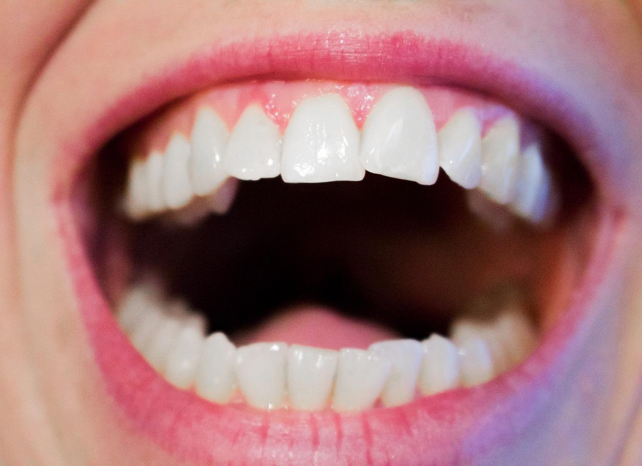 5 גורמים שמשפיעים על המחיר של השתלת שיניים