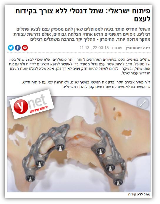 """ד""""ר מאיר אבירם, Ynet"""
